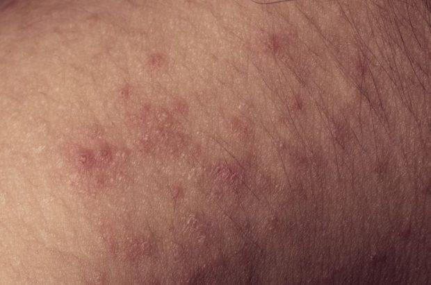 Hautkrankheiten und Sex – Das sollten Sie wissen